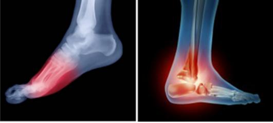 Orthopedic Analysis